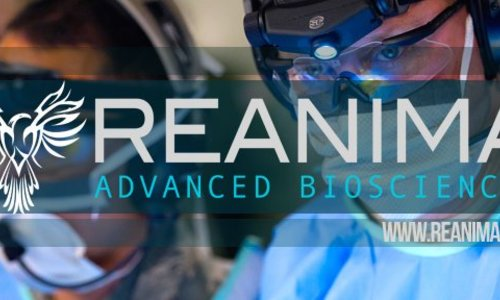 acf3876ad Biotechnologická spoločnosť sa pokúsi použitím kmeňových buniek reaktivovať  mozog mŕtvych ľudí
